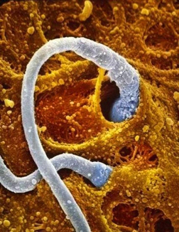 Два сперматозоида