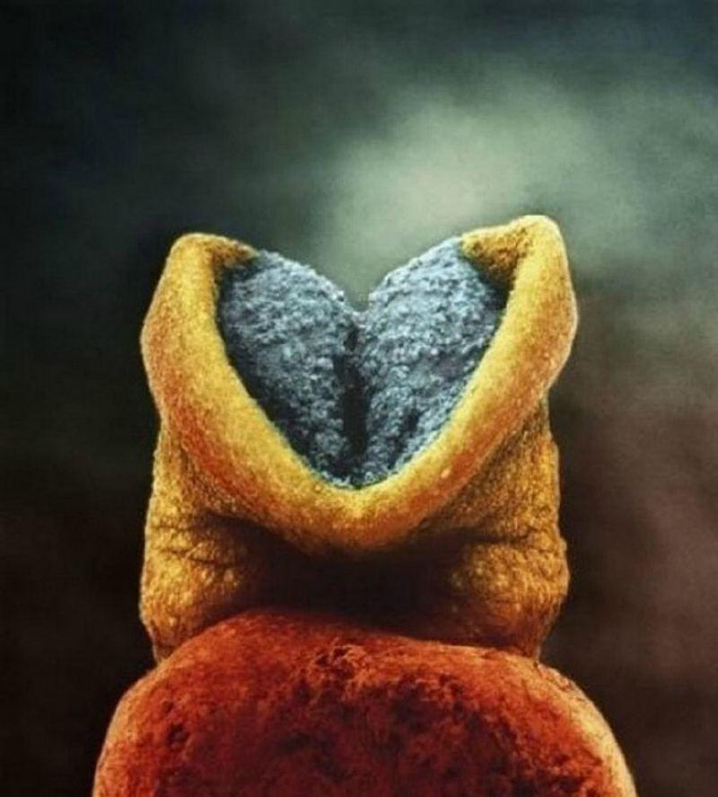 Эмбрион 22 недели