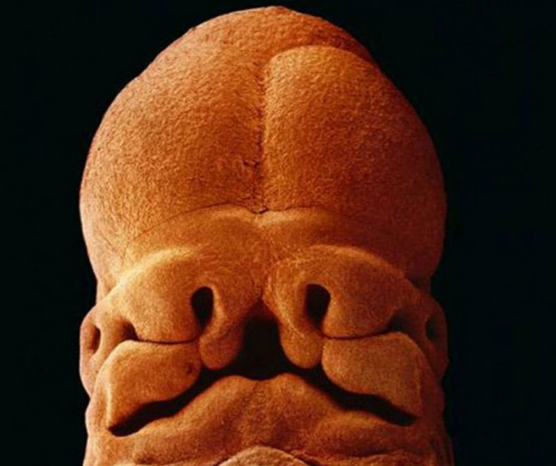 Эмбрион 5 недель