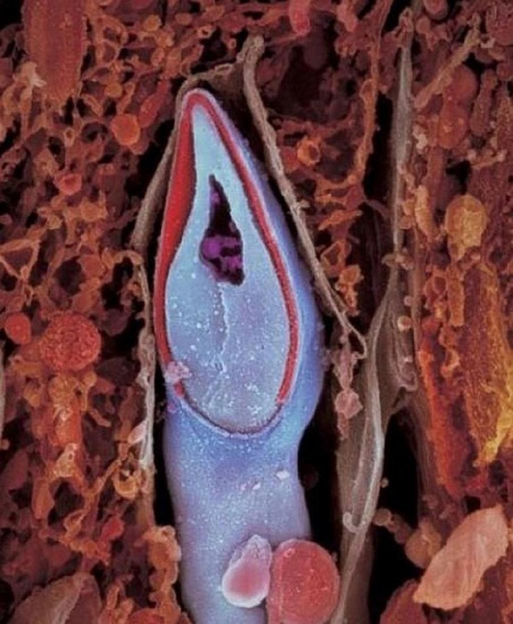 сперматозоид в разрезе